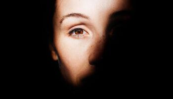 blog-image-melasma-large