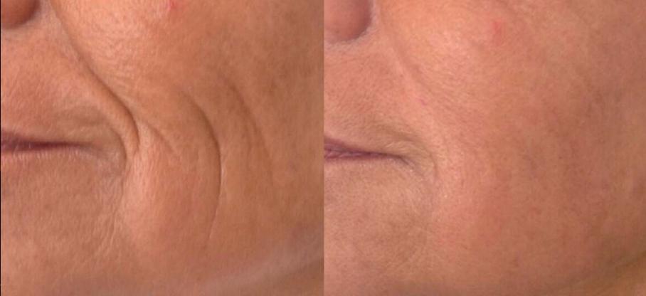 Fontona 4-D Non-Surgical Facelift