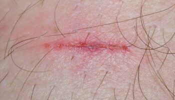 blog-image-scarring
