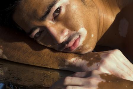 blog-image-vitiligo